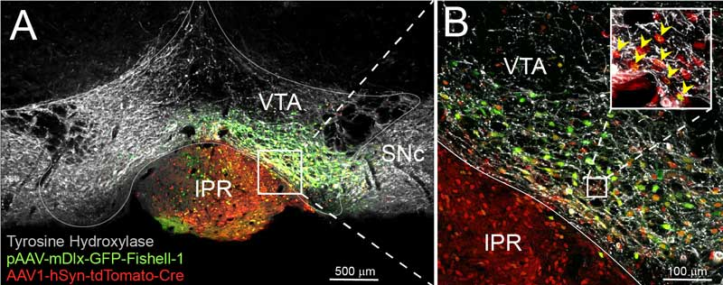 Photo: Anatomical staining of different cellular populations in the ventral tegmental area of the brain.
